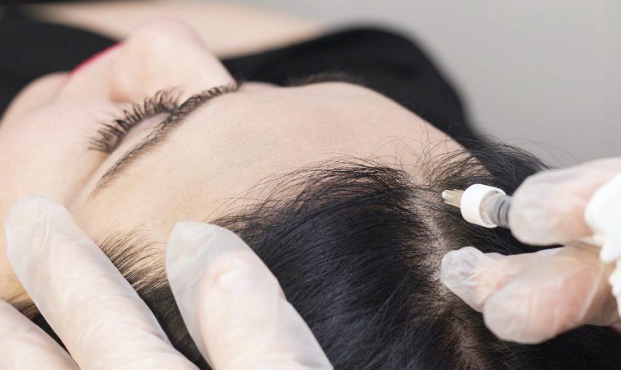 甩頭髮係先天問題定係後天生活習慣所致?解構男士脫髮原因的7個迷思